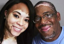 Cuban Researchers Discover Treatment for Vitiligo & Brings Relief to the Entire World