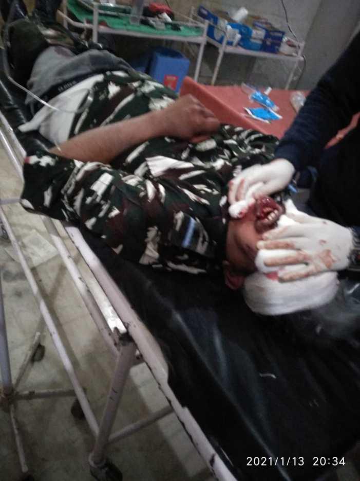 قاضی گنڈ میں سڑک حادثہ، سی آر پی ایف افسر شدید زخمی