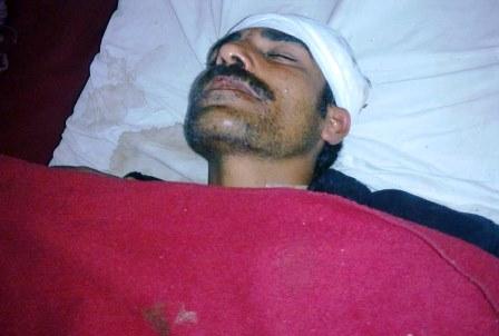 گلگت: دکاندار پر پولیس اہلکاروں کا مبینہ تشدد، بے ہوش چھوڑ کر فرار ہو گئے