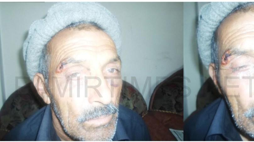 راشی پولیس افسر نے پھنڈر میں اسی سالہ بزرگ کو بد ترین تشدد کا نشانہ بنا ڈالا