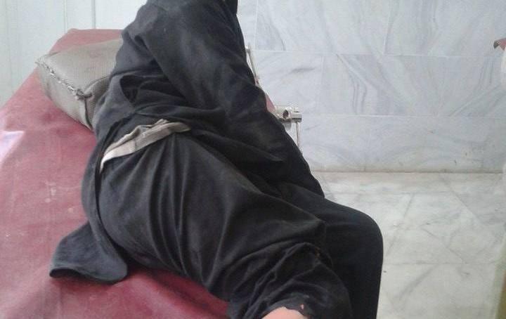 دروش میں باولے کتوں کا راج ، ایک دن میں پانچ افراد کو کتوں نے کاٹ لیا
