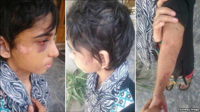 راولپنڈی ،گھریلو ملازمہ پر تشدد کا نیا کیس سامنے آگیا