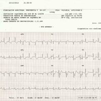 CASO 92: ANGINA INESTABLE, SCASEST
