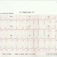 CASO 196: Dolor precordial, ECG descenso generalizado de ST