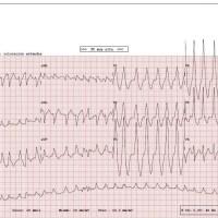 CASO 222 Taquicardia de QRS ancho, ARRÍTMICA