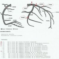 CASO 234: SCASEST precedido de dolores torácicos atípicos