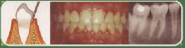 periodontitis inicial