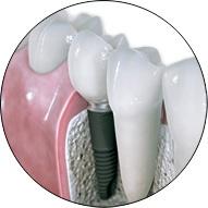 Perdida de dientes
