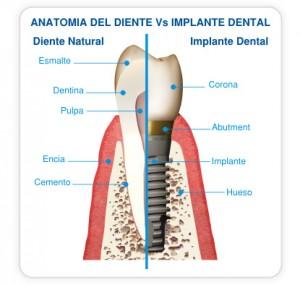Anatomia-implante