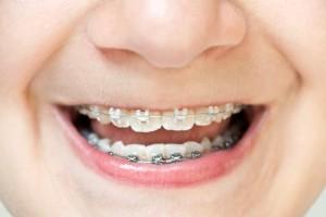 Ortodoncia infantil en Palma de Mallorca