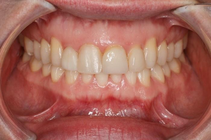 Fotografía dental ¿En que puede ayudarnos?