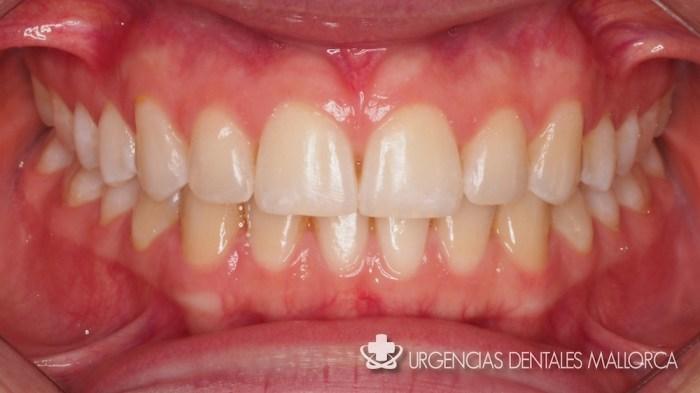 Tratamientos de la enfermedad periodontal