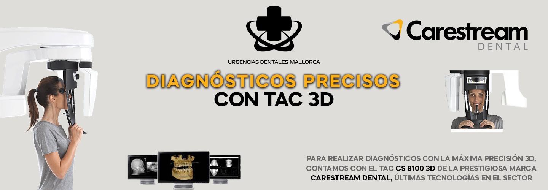 Diagnósticos precisos con TAC 3D