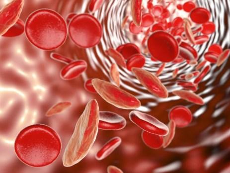 Das Blutbild bei Sichelzell Anämie - eine der zahlreichen Anämie Formen des Menschen.