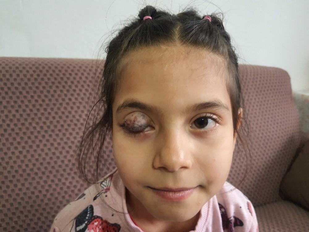 7 Yaşındaki Beyza'nın Yardım Çığlığı