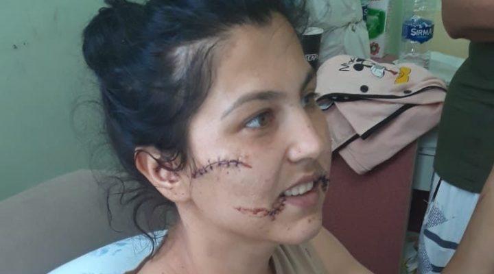 Eşini 104 yerinden bıçaklayan sanığa 20 yıl hapis talebi