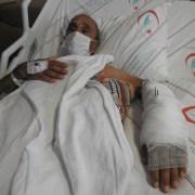 Çeşmedeki Hastanede Ameliyat Başarısı: Kopmak Üzere Olan Kolu Kurtardılar