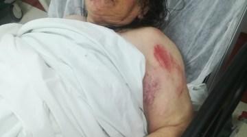 İzmir'de Sel Sularına Kapılan Yaşlı Kadının Sağlık Durumu İyi
