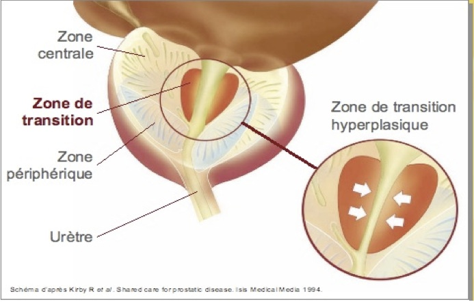 Prostate Zone de transition