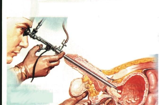 Schema Résection Transuretrale de la Prostate RTUP RTP Vincent Hupertan Urologue Paris