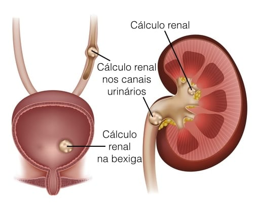 calculo-renal