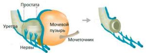 Удаление камней из мочевого пузыря в Москве