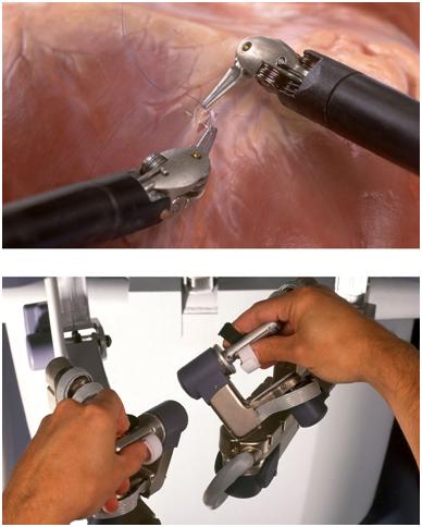 robotik cerrahi sistem