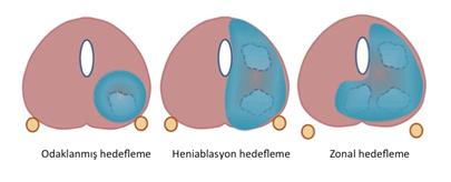 hifu prostat tedavisi