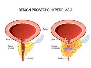 Benign prostatic hyperplasia (BPH). prostate enlargement.