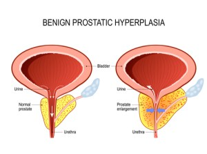 Diagram of a normal prostate and one with BPH