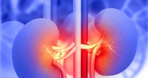 Kidney Stone Treatment through Urological Specialists of Ohio in Springfield Ohio