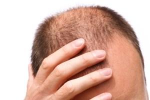 Obat Penumbuh Rambut Tradisional dapat menyembuhkan rambut rontok dan kepala botak