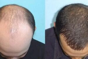 Jual Minyak Kemiri Kukui dan Al Khodry Asli di Solo murni 100% berkhasiat untuk menebalkan rambut, jenggot, alis dan kumis. Lalu minyak kemiri bisa juga mengatasi rambut rontok dan ketombe.