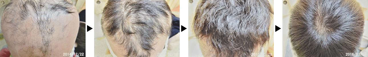29歳女性の円形脱毛症治療