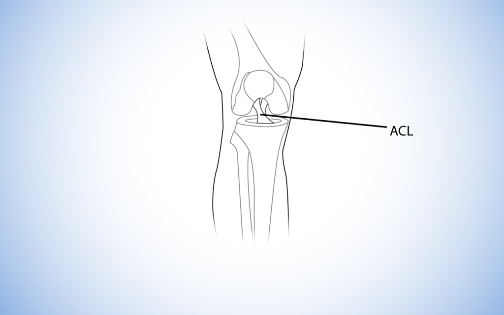 Anatomy diagram showing an Anterior Cruciate Ligament / ACL Injury