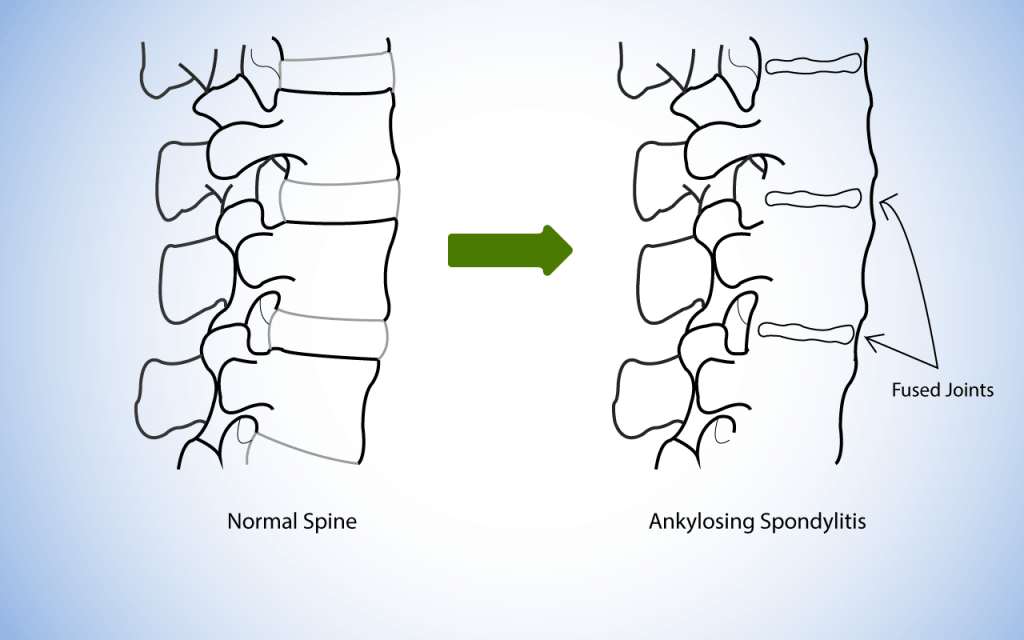 Anatomical Diagram showing healthy spine compared to spine affected by Ankylosing Spondylitis