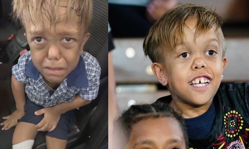 Quaden Bayles Australian Boy Bullying Dwarfism