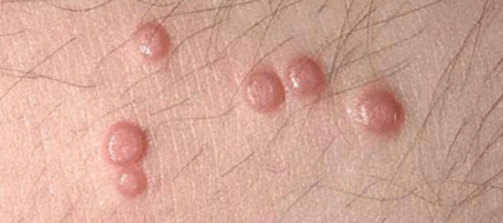 Long, thick itchy bumps on vulva such