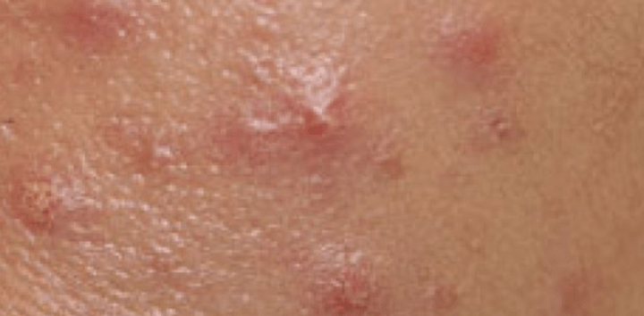 Does This Sound Like Genital Herpes Or Irritation? 3