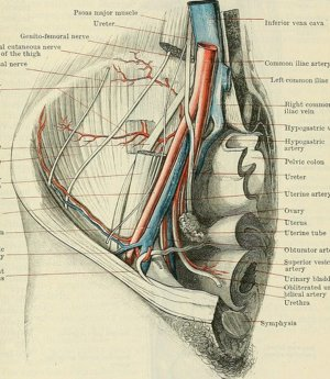 What Is a Femoral Hernia and How Is It Treated? My