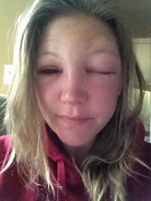 Morning After Bee Sting To The Eyelid One Eye Completely Closed This Was A