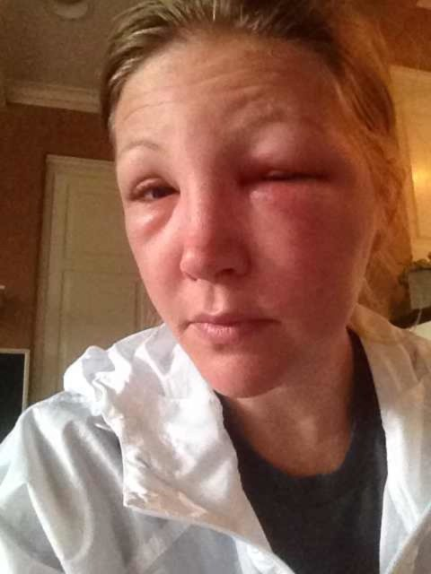 One Day After Bee Sting To The Eye Began Prescription Medication 24 Hours Initial