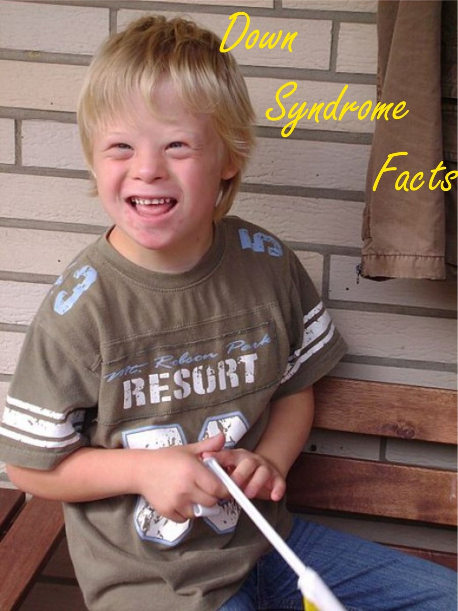What Is Down Syndrome Facts And Symptoms