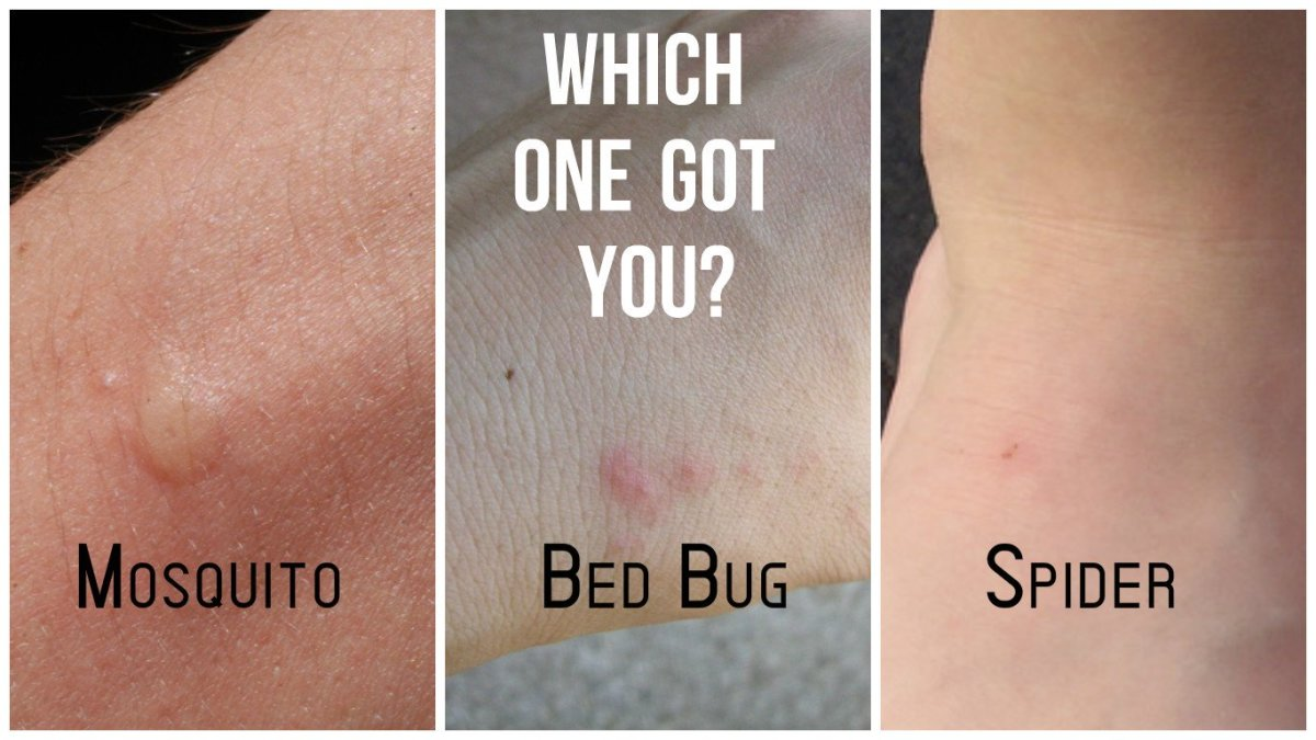 Identification Skin Bug Bites Chart