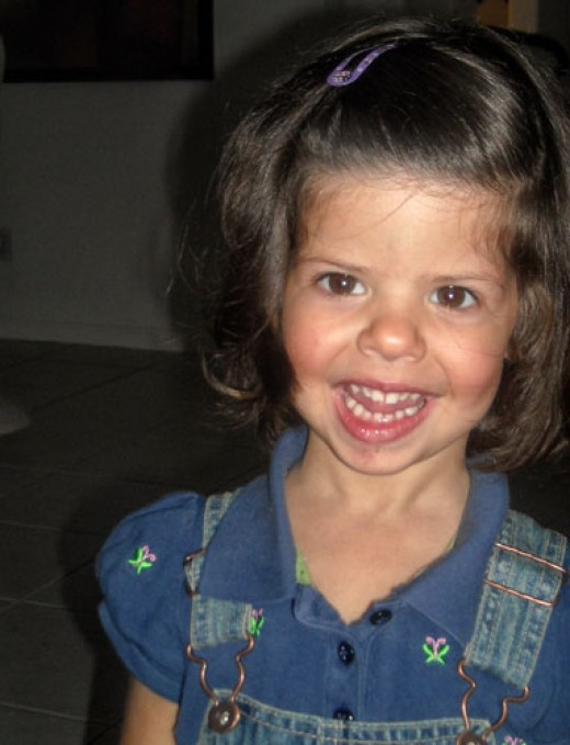 Williams Syndrome a Genetic Disease of Empathy HubPages