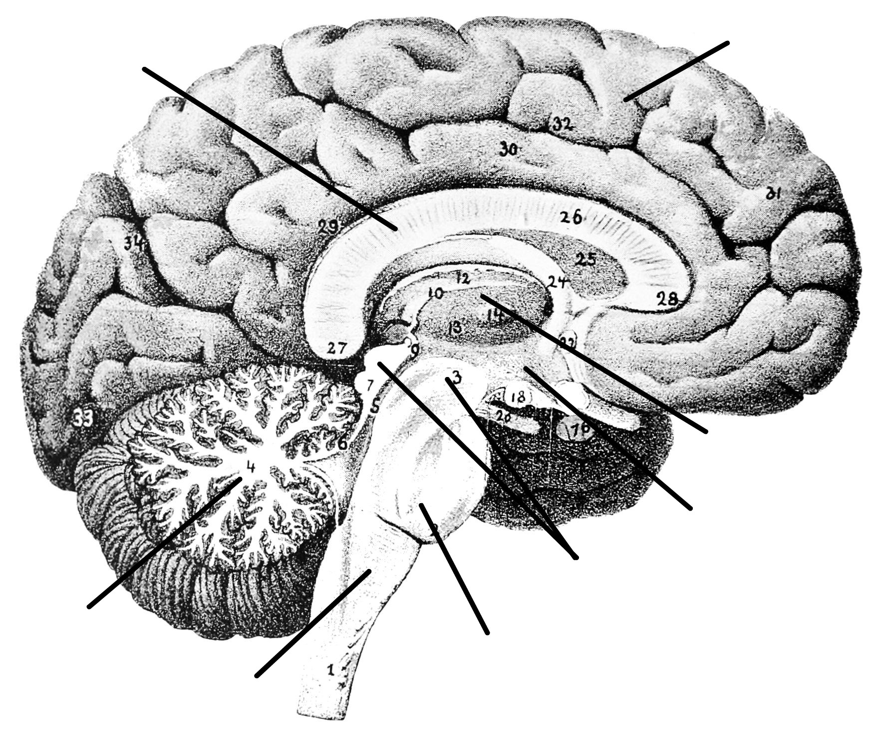 Blank Brain Diagram Sagittal