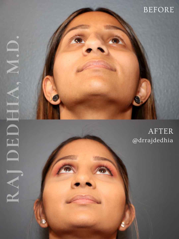 UTHSC ENT - Raj Dedhia - Rhinoplasty