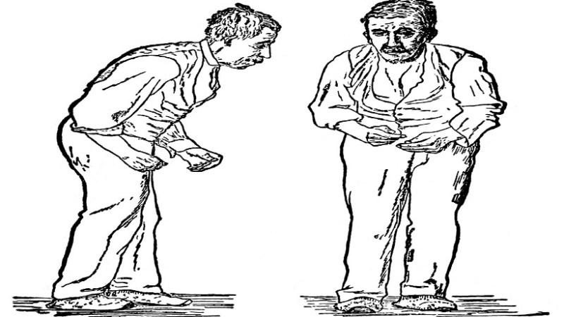 পার্কিনসন'স…রোগের ঝুঁকি কমাতে পারে যে সবজি