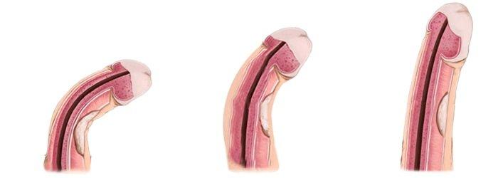 penis w aborygenów