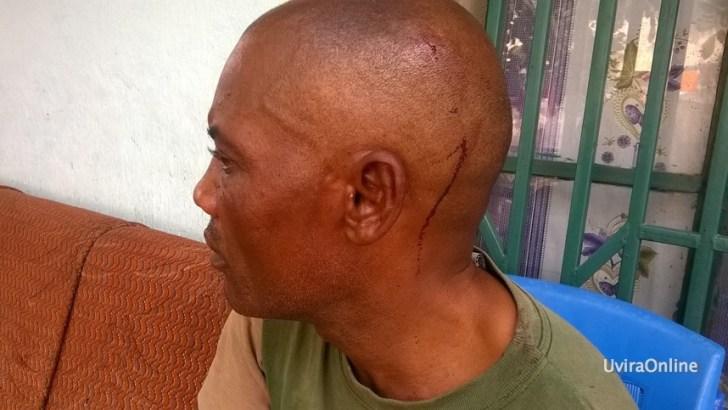 Uvira-RDC: Mwanaume mumoja kamupiga babake leo siku ya tano